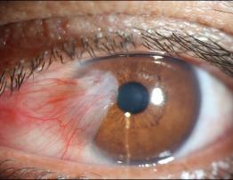 Você sabe o que é Pterígio? Conheça os sintomas e tratamento.
